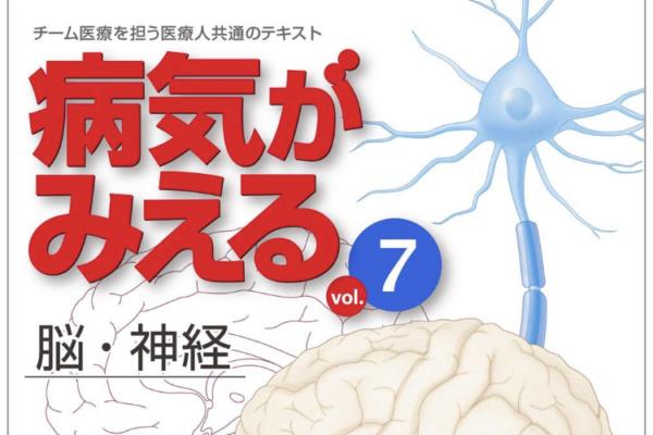 """""""病気がみえる⑦ 脳・神経""""の感想"""