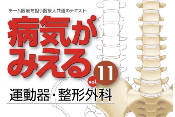 """""""病気がみえる⑪ 運動器・整形外科""""の感想"""