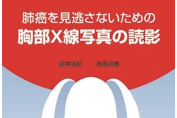 """""""肺癌を見逃さないための 胸部X線写真の読影"""""""