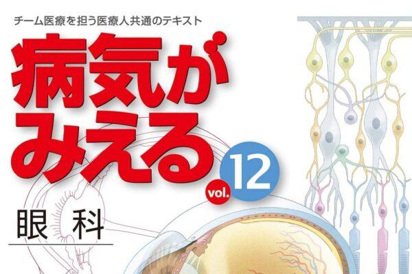 """""""病気がみえる vol.12 眼科""""の感想"""